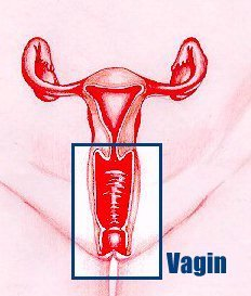 Vagina - Vaginal Cancer